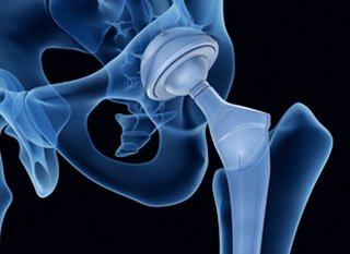 defective hip implants